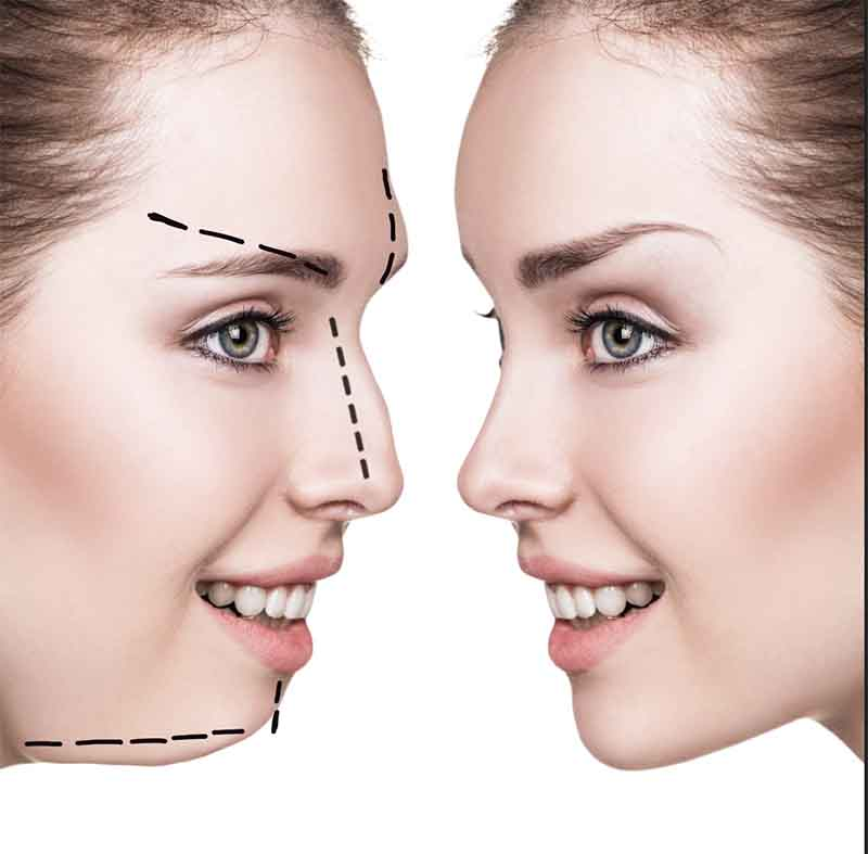 Cirugía estética para usuarios de la revista Wondergay