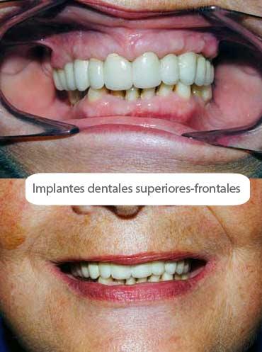 Implantes dentales boca
