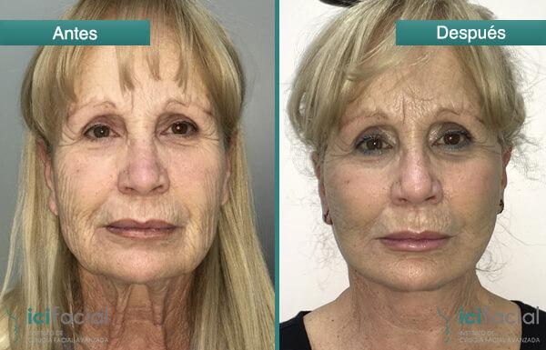 Mujer operada de lifting cuello y cervico facial