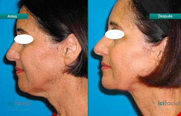 Antes y después de Lifting de cuello
