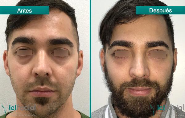 Lipofilling antes y depués