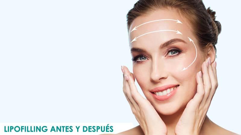 Fotos de lipofilling facial antes y después