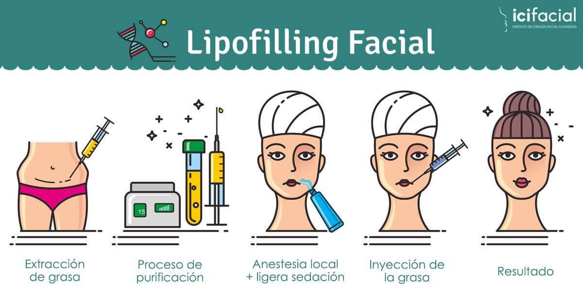 Pasos necesarios para un lipofilling facial