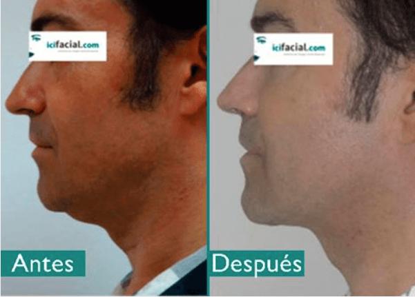 Antes y después de Liposucción de cuello