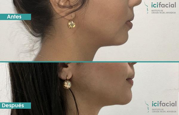 Paciente operada de mentoplastia en Madrid antes y después