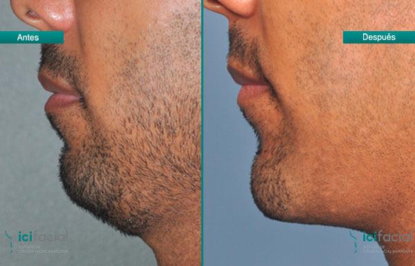 Antes y después de mentoplastia