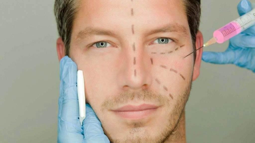 Mesoplastia facial en Madrid