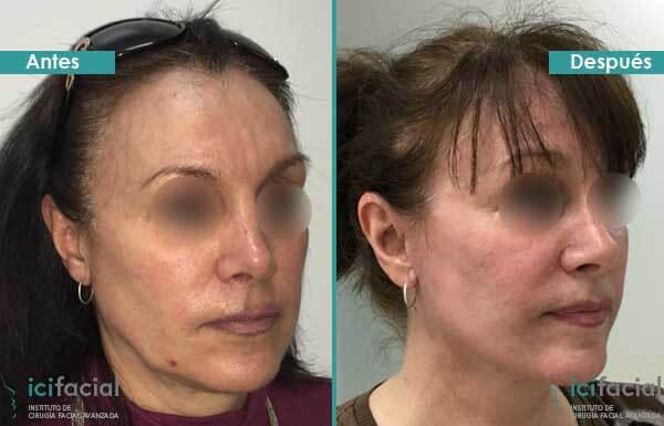 Minilifting facial antes y después en mujer por Dr Macia