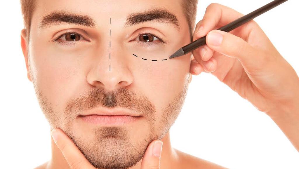 Mitos más extendidos en la cirugía facial