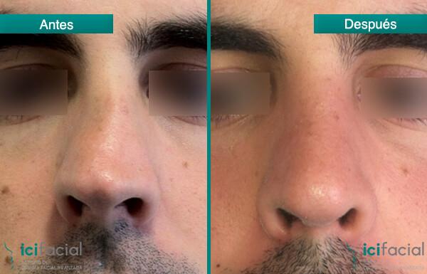 Operación de septoplastia o cirugía del tabique nasal realizada por Dr Macía