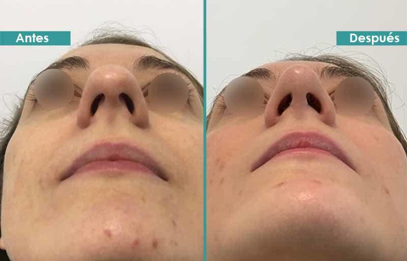 Rinoplastia punta redonda a triangular