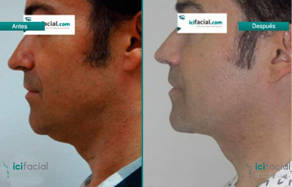Antes y después liposucción de cuello