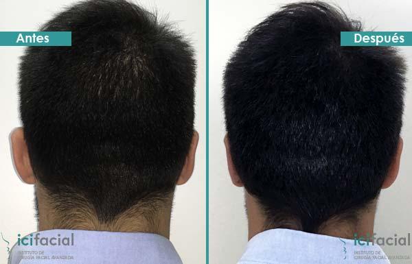 Operación de otoplastia antes y después en hombre adulto