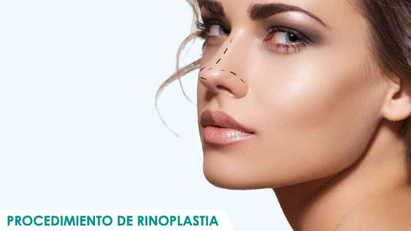 Procedimiento de rinoplastia por Dr. Macía
