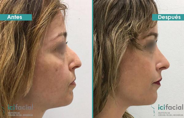 Mujer operada de rinoplastia ultrasónica