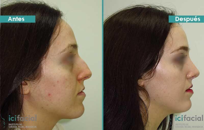 Rinoplastia antes y después operada por Dr. Macía
