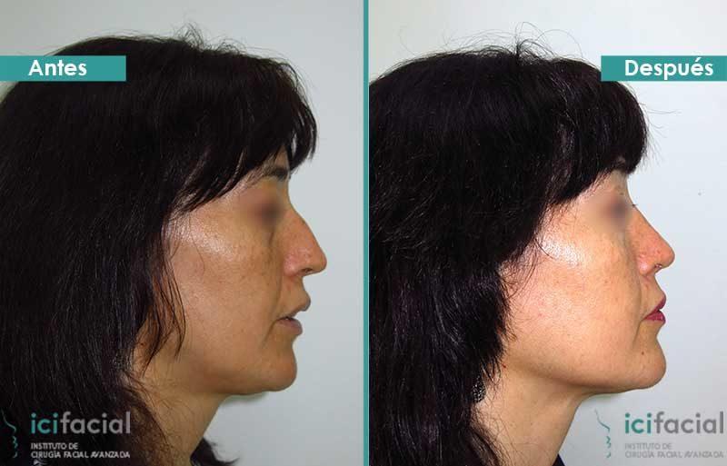 Rinoplastia antes y después en mujer operada por Dr. Macía
