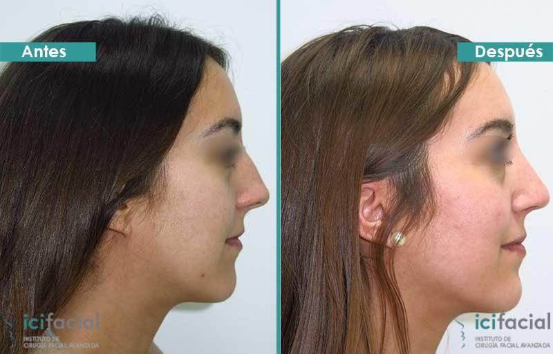 Rinoplastia antes y después en joven operada por Dr. Macía