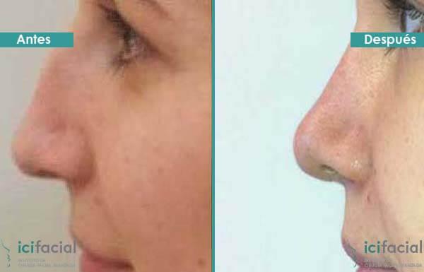 Rinoplastia mujer antes y después