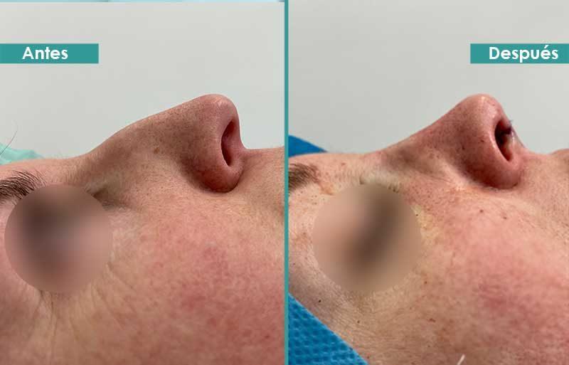 Rinoplastia ultrasónica justo antes y después de operación