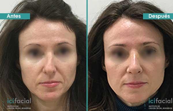 Desviación de tabique arreglada con rinoplastia en Madrid