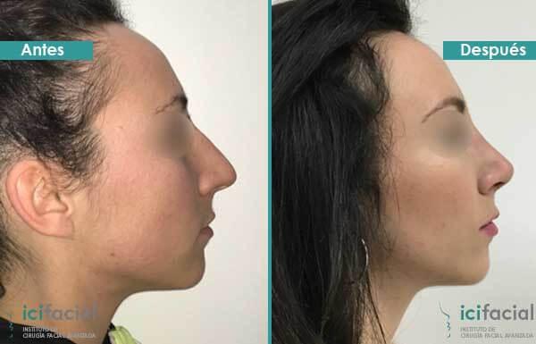 Rinoplastia de elevación de la punta nasal en Madrid por Dr Macia
