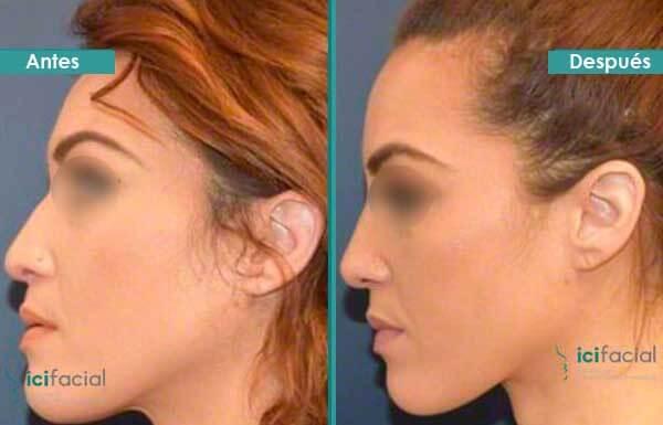 Mujer sometida a una rinoplastia funcional antes y despues