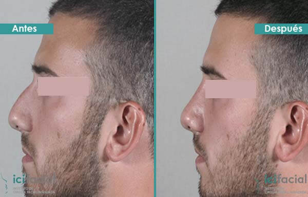 Rinoplastia de reducción de giba dorsal en hombre