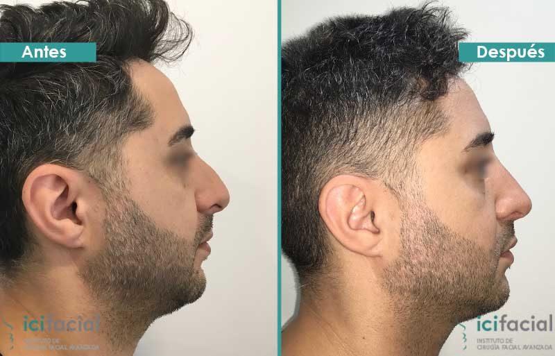 Rinoplastia en hombre antes y después