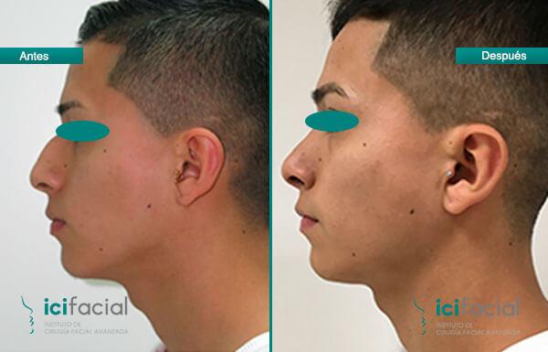 Paciente de rinoplastia sometido a una operación de nariz en Icifacial