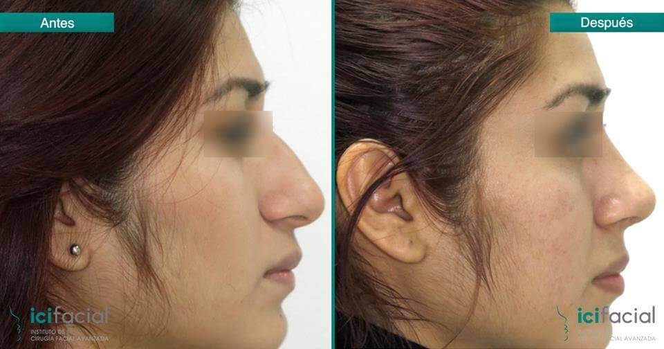 Rinoplastia mujer con reducción de giba dorsal
