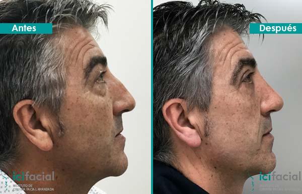 Hombre operado de rinoplastia en Madrid para solucionar giba