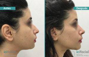 Rinoplastia de limado de caballete antes y después