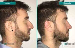 Rinoplastia en Madrid de nariz aguileña en hombre por Dr Macía