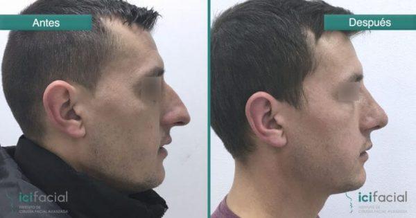 Hombre operado de nariz antes y después