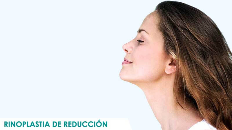 Rinoplastia de reducción en Madrid por Dr. Macía Colón