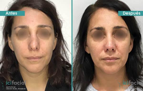 Rinoplastia secundaria antes y después en mujer operada en Icifacial