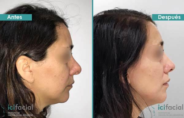 Operación de rinoplastia secundaria antes y después realizada por Dr Macía