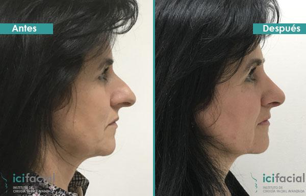 Mujer operada de rinoplastia ultrasonica en Icifacial