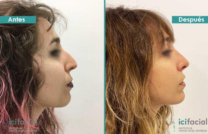Rinoplastia ultrasonica en Madrid por Dr. Macia
