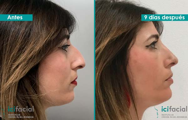 Fotos del antes y despues de una cirugia de nariz 91