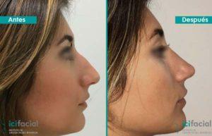 Rinoplastia ultrasónica en mujer antes y después