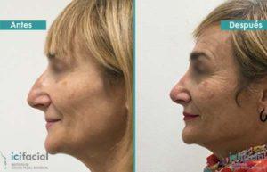 Rinoplastia en mujer para reducir el dorso