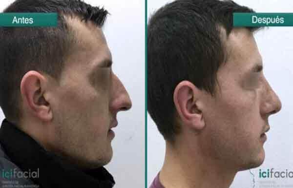 Rinoplastia en Madrid de nariz aguileña en hombre