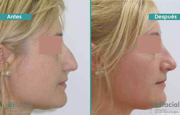 Rinoplastia en Madrid de nariz aguileña en mujer