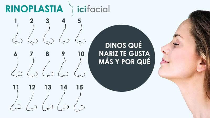 Tipos de nariz para rinoplastia que pueden operarse