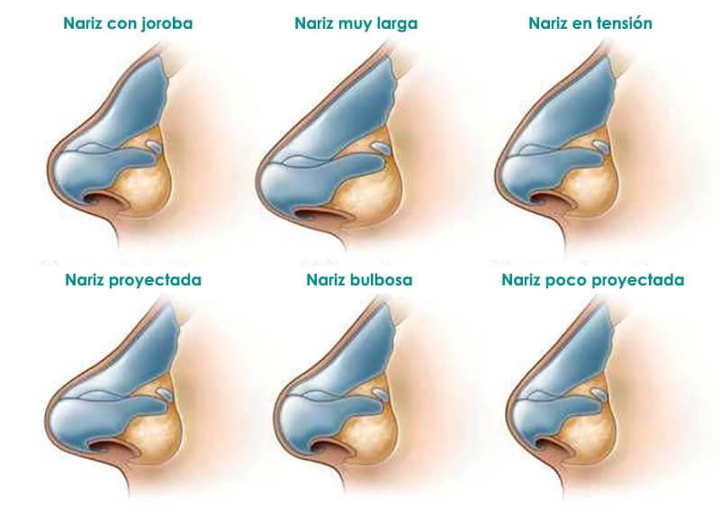 Tipos de nariz para la rinoplastia