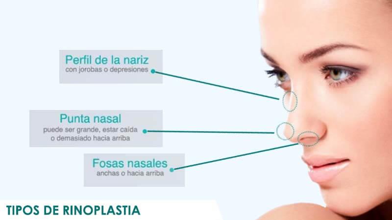 Tipos de rinoplastia y narices