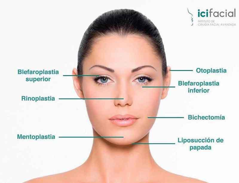Tratamientos de cirugía estética en Madrid ofrecidos por Icifacial